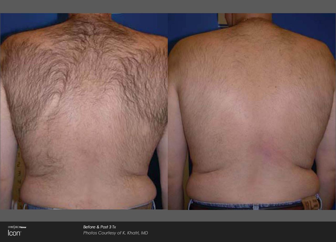 Hair Removal - White Settlement Family Medicine